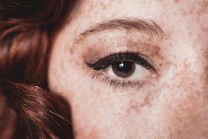 freckles_01-76b097eddec5ec0135fa2992e8ac5e49